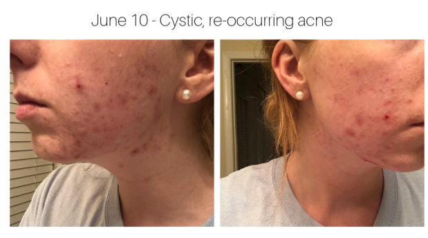 June 10 - Cystic, re-occurring acne